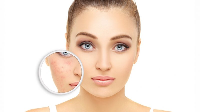akne-dermatologija-poliklinika-diva-laser